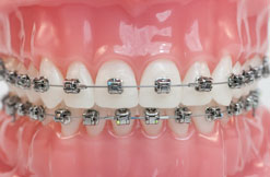 Damon Metal Braces Drobocky Orthodontics