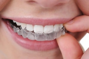 Invisalign Myths Bowling Green KY