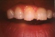 Grinding teeth Bowling Green KY