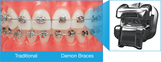 Choose-Compare-Braces