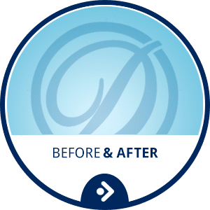Before & After Horizontal Button at Drobocky Orthodontics in Bowling Green obocky Orthodontics in Bowling Green Glasgow Franklin KY