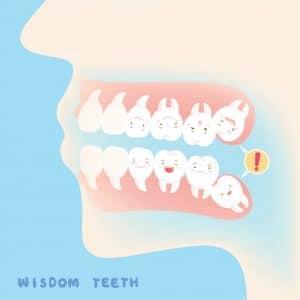 Wisdom teeth Bowling Green KY