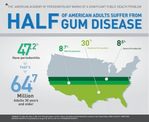 Gum Disease Bowling Green KY