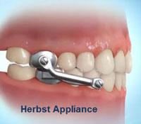 Appliance Care Drobocky Orthodontics Bowling Green Glasgow Franklin KY